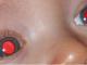 Pourquoi avons-nous les yeux rouges sur les photos avec flash ?