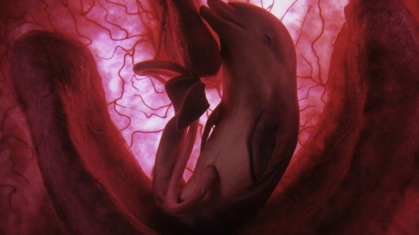 Dauphin in-utero