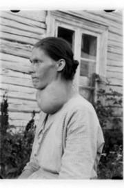 Goitre thyroïdien