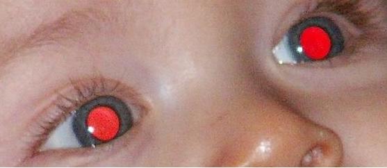 Le masque pour la personne de 30 ans la peau huileuse